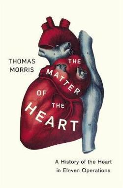 Matter of the Heart - A History of the Heart in Eleven Operations